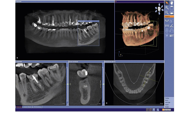 3D Dental Imaging
